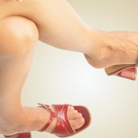 Варикоз вен ног.