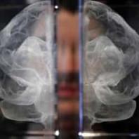 Заболеть Альцгеймером может каждый пятый россиянин